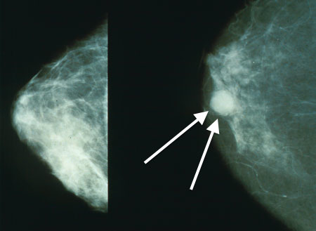 Pre-diagnosis blood glucose and prognosis in women with breast cancer