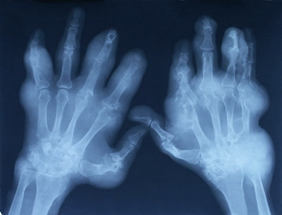Palindromic Rheumatism: An Unusual Cause of Chronic Intermittent Arthritis